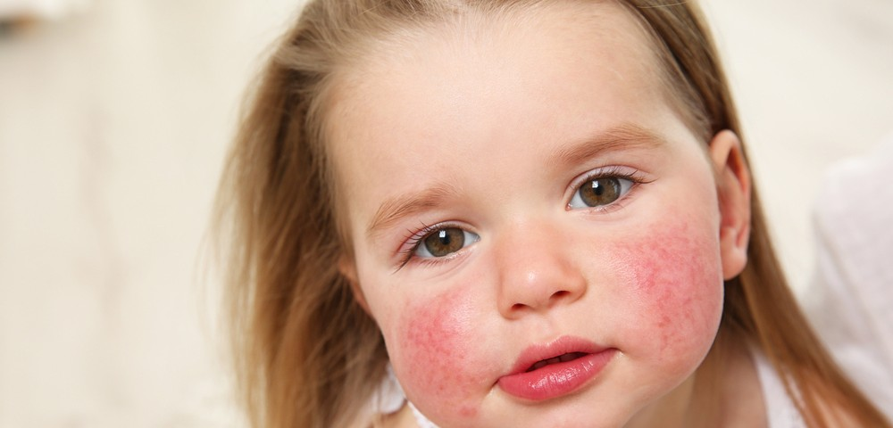 baby-allergy-1000x600 copy